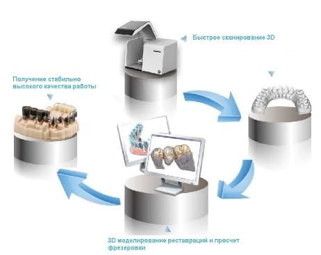 оптический сканер dentalscan-s фото 5
