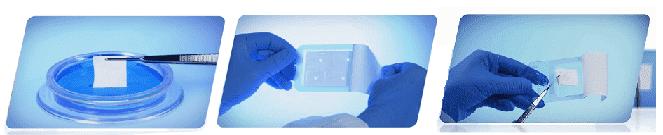bio gide мембрана резорбируемая фото 8